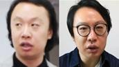 동일 인물 맞나요?<br>머리숱 되찾은 비법 대공개