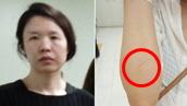 치료한 의사까지 의아했던<br>고유정 오른손 상처
